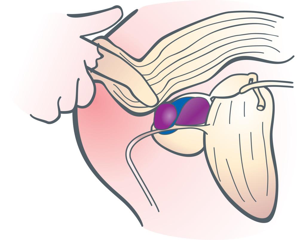 Можно ли при простатите делать прогревание тибет от простатита