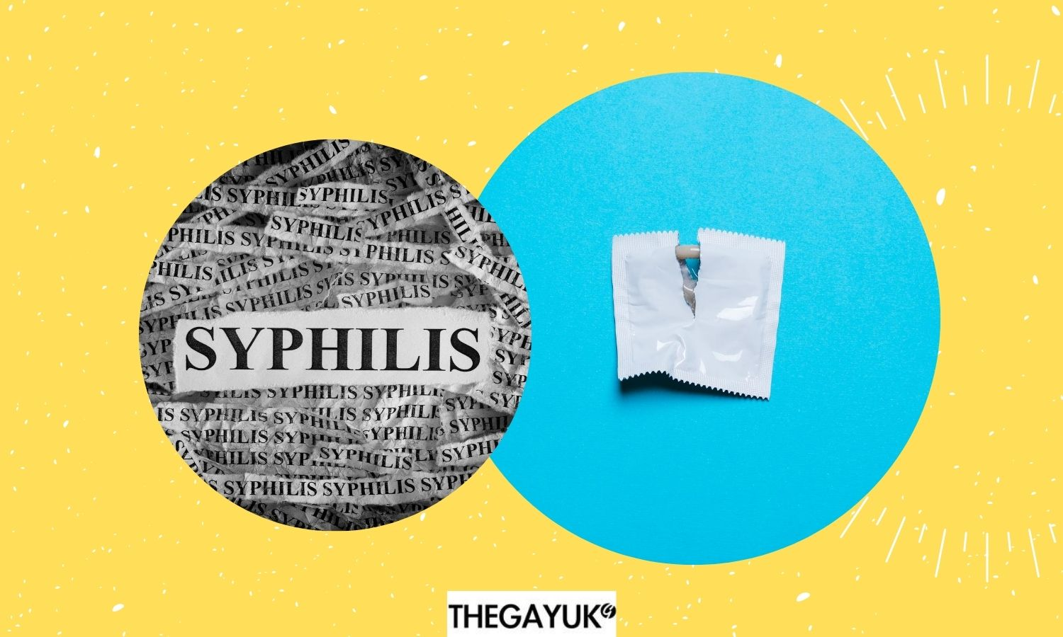 Everything you need to know about Syphilis